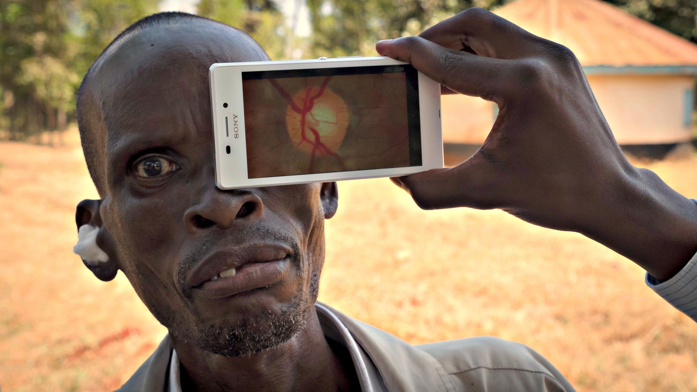 peek_retina_test_i_kenya.jpg