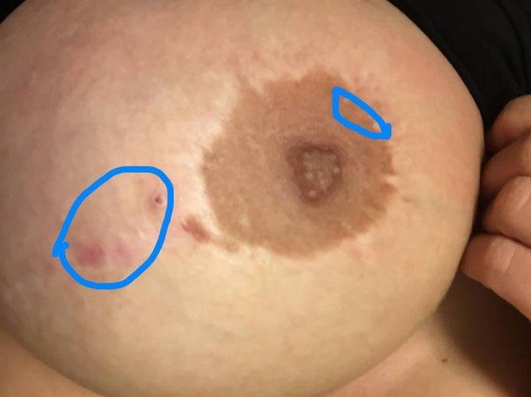 Dansk porno free smerter efter hysterektomi