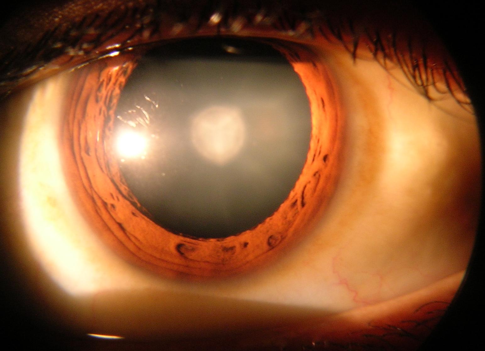 Cataract_in_human_eye.png