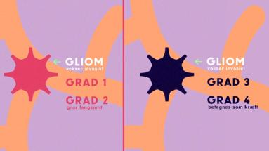gliom