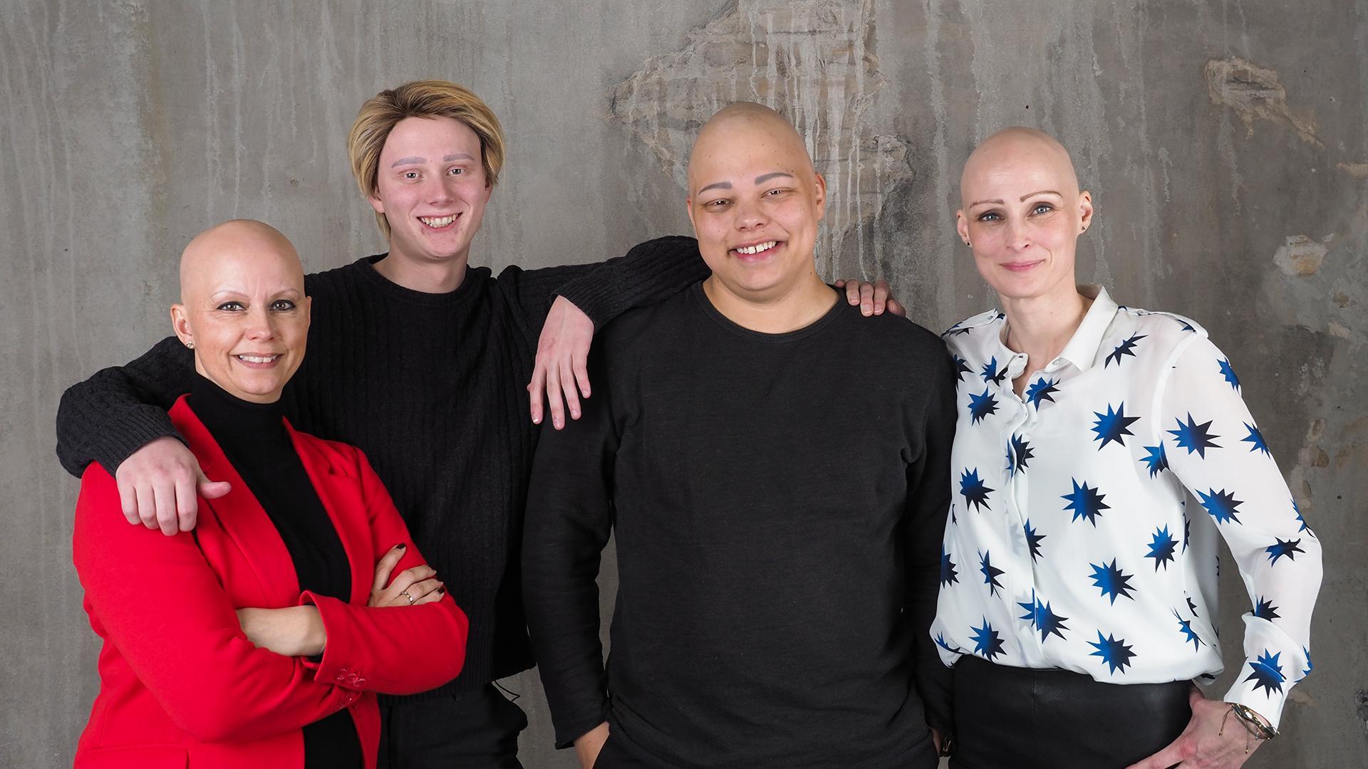 Anderledes som mig - Alopecia