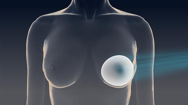 brystimplantater Frederiksberg