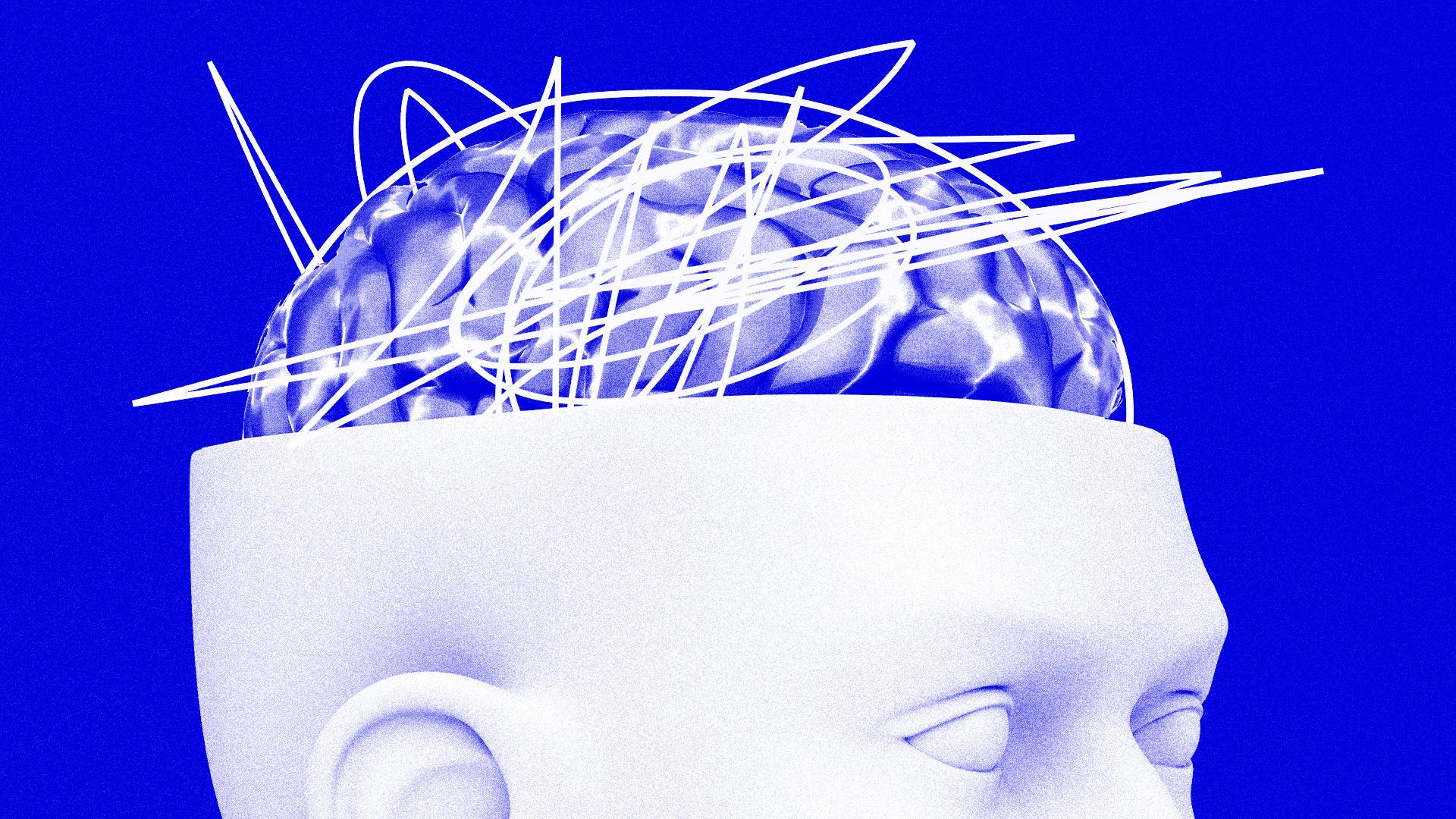 stress-hjerne.jpg