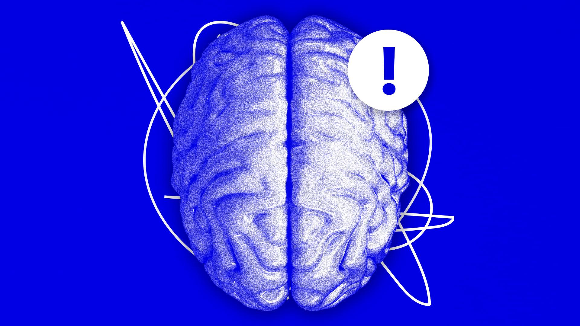 stress-hjerne-line.jpg