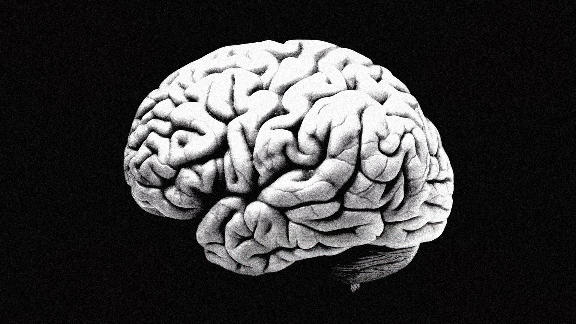 hjerne.jpg