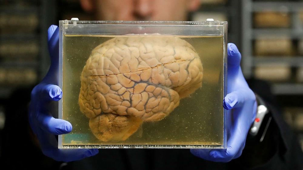 Langt liv øger risikoen for hjernesygdomme